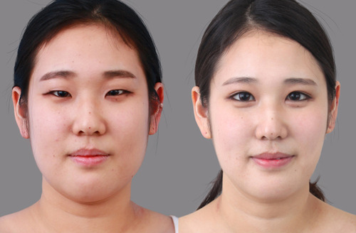 Hawaii Eyelid Surgery - blepharoplasty
